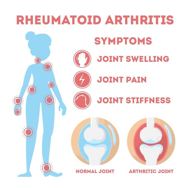 Infografica sui reumatismi. malattia ossea a piedi, mano Vettore Premium