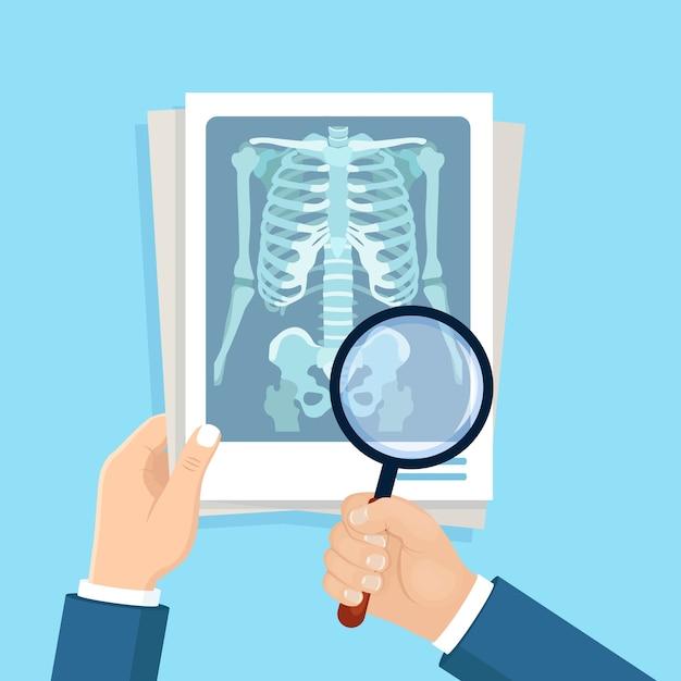 Colpo a raggi x del corpo umano e lente d'ingrandimento in una mano di medici. roentgen dell'osso toracico Vettore Premium