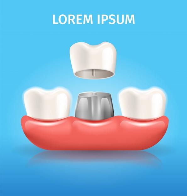 Affiche dentaire vecteur réaliste de couronne dent Vecteur Premium