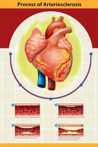 Affiche du processus d'artériosclérose Vecteur Premium