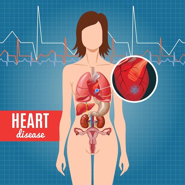 Affiche De Maladie Cardiaque De Dessin Animé Vecteur gratuit