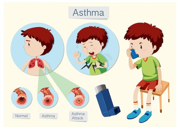 Anatomie humaine et asthme de santé Vecteur Premium