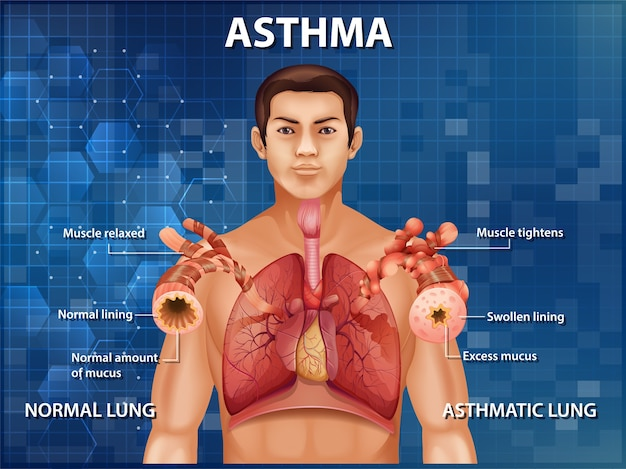 Anatomie Humaine Diagramme De L'asthme Vecteur gratuit