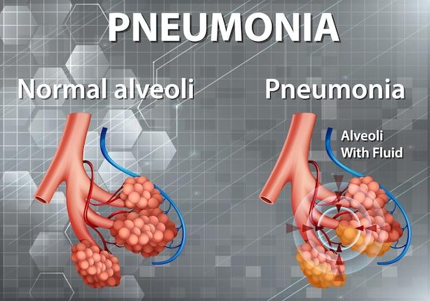 Anatomie Humaine Montrant Une Pneumonie Vecteur gratuit