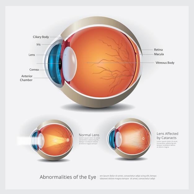 Anatomie oculaire avec anomalies oculaires Vecteur Premium