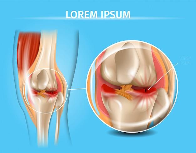 Articulation du genou blessée avec graphique de vecteur de ménisque déchiré Vecteur Premium