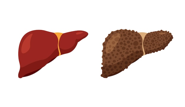 Atty Foies. Foie Malade En Mauvaise Santé Et Foie Sain Et Fort. Anatomie Du Système Digestif. Icône De Fibrose Et De Cirrhose Isolée Sur Fond Blanc. Vecteur Premium