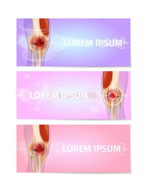 Bannières web médicaux avec genoux joints vector set Vecteur Premium