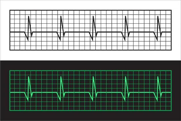 Cardiogrammes à bande Vecteur Premium