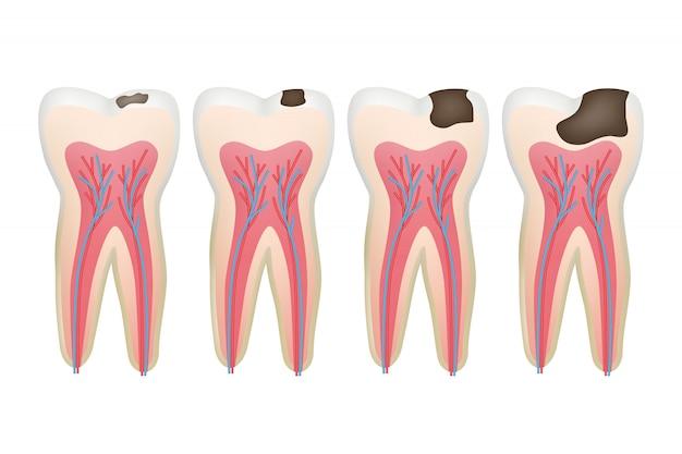Carie Dentaire. Procédure De Problème Dentaire En Chaire De Carie Vecteur Premium
