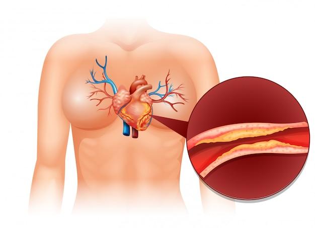 Cholestérol cardiaque chez l'homme Vecteur gratuit