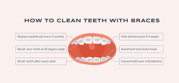 Comment Nettoyer Les Dents Avec Des Accolades Illustration Plate Vecteur Premium