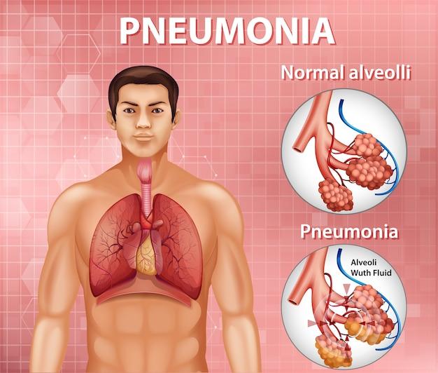 Comparaison Des Alvéoles Saines Et De La Pneumonie Vecteur Premium