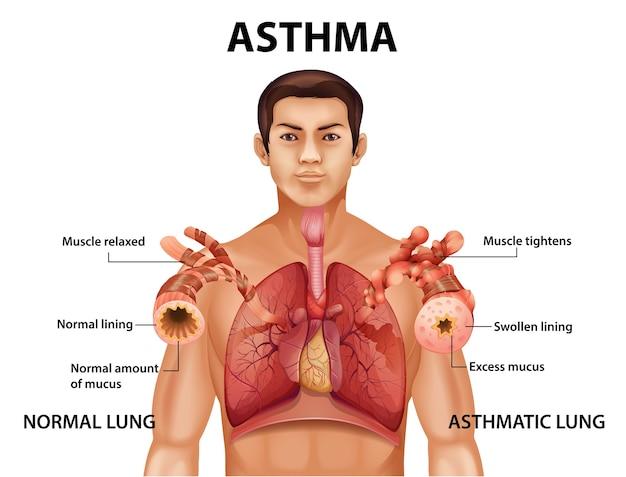 Comparaison D'un Poumon Sain Et D'un Poumon Asthmatique Vecteur Premium