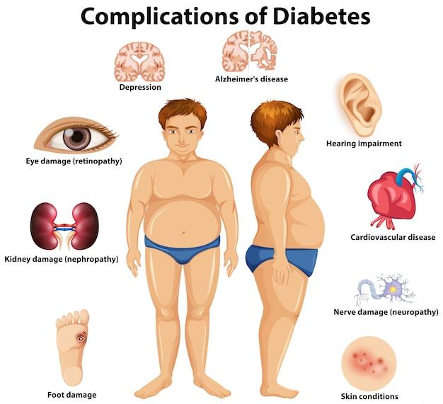 Les Complications Du Concept Du Diabète Vecteur Premium
