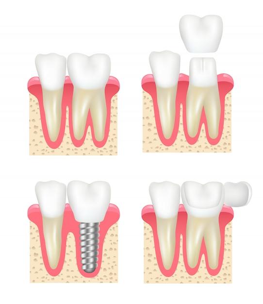 Couronne Dentaire. Placage Dentaire Implants Collection De Dentiste De Stomatologie De Cavité Saine Vecteur Premium