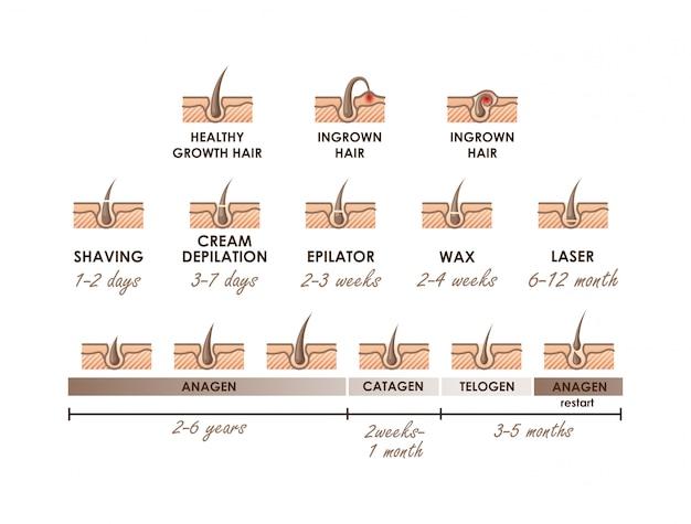 Croissance Saine Des Cheveux. Poil Incarné. Phases De Croissance Des Cheveux. Différentes Méthodes D'épilation. Types D'épilation Avec Actions Chronologiques Vecteur Premium