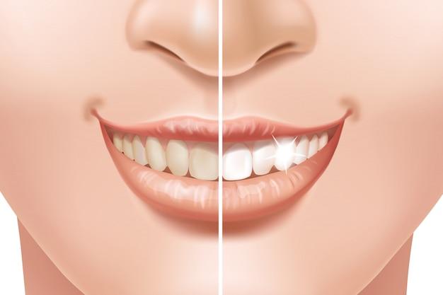 Les Dents Avant Et Après Le Traitement De Blanchiment. Vecteur Premium