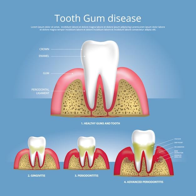 Dents humaines étapes de la maladie des gencives illustration Vecteur Premium