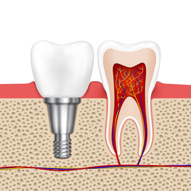 Dents Saines Et Implant Dentaire. Dent D'implant, Dentisterie Médicale Dent De Santé, Illustration Vectorielle Vecteur gratuit