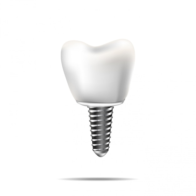 Des dents saines et un implant dentaire. illustration réaliste de la dentisterie médicale dentaire Vecteur Premium
