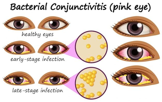Diagramme montrant la conjonctivite bactérienne dans l'oeil humain ...