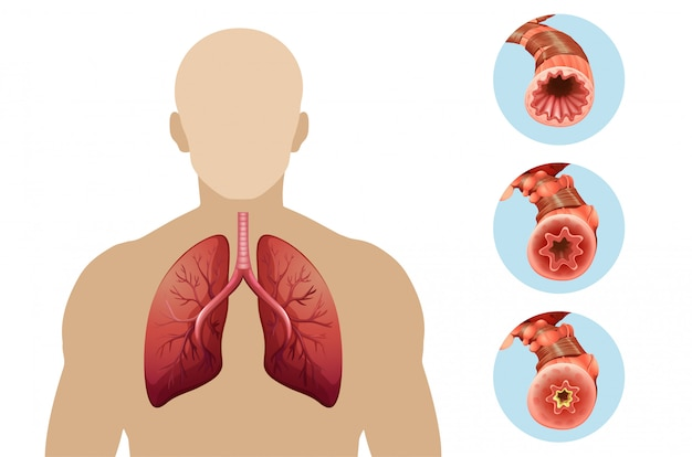 Diagramme Montrant Une Maladie Pulmonaire Obstructive Chronique Vecteur gratuit