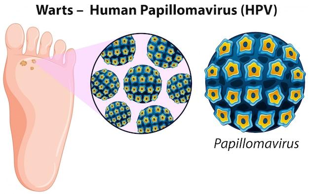 Diagramme montrant des verrues dans le pied humain Vecteur gratuit