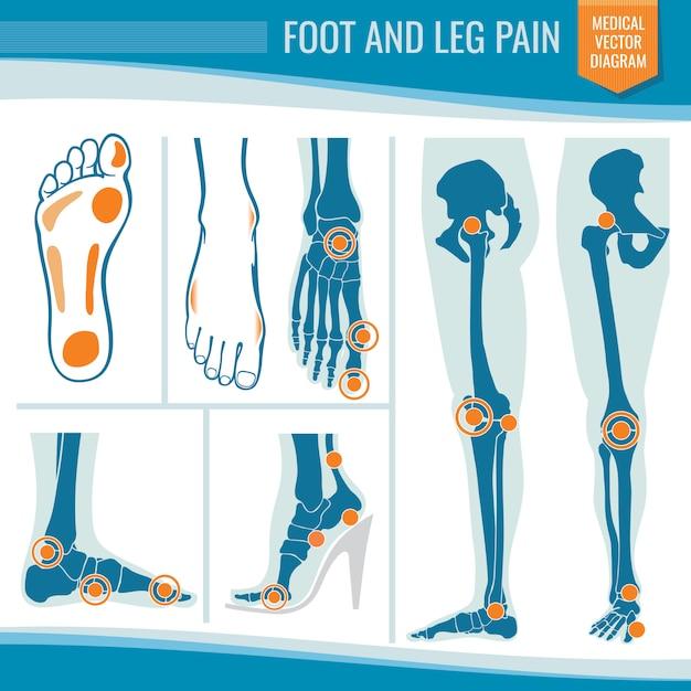 Douleur au pied et à la jambe. diagramme de vecteur médical orthopédique arthrite et rhumatisme Vecteur Premium