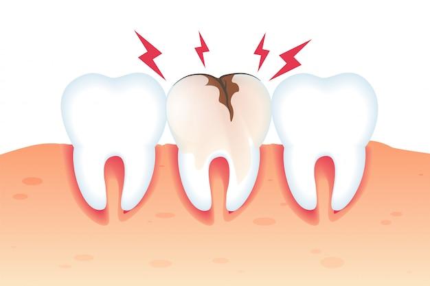 Douleur dans la dent cassée illustration réaliste 3d. Vecteur Premium