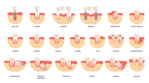 Ensemble De Dents Humaines Dans Des Conditions Différentes. Concept De Santé Dentaire Et De Maladie. Idée De Santé Bucco-dentaire Et De Traitement Médical. Illustration Vecteur Premium
