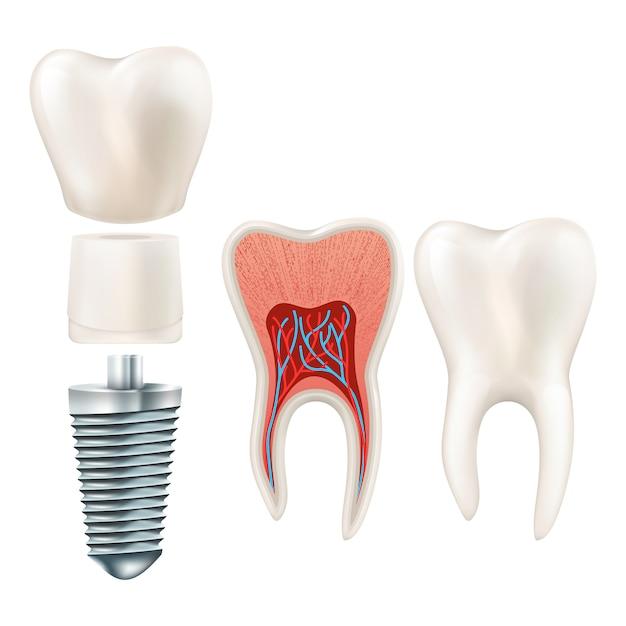 Ensemble D'implants Dentaires. Vecteur Premium
