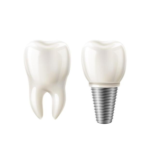 Ensemble Réaliste De Dents Blanches Et D'implants Dentaires. Vecteur Premium