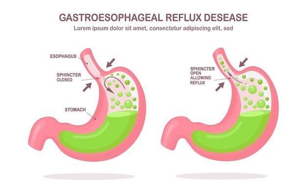 Estomac Humain. Reflux Gastro-œsophagien. Rgo, Brûlures D'estomac, Infographie Gastrique. Acide Remontant Dans L'œsophage. Vecteur Premium