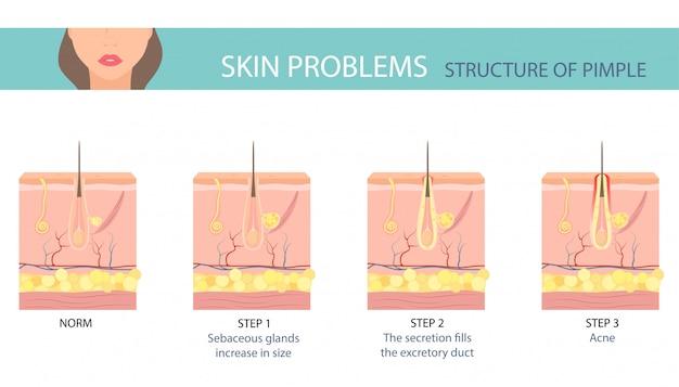 Étapes De La Formation D'acné Sur La Peau Humaine. Vecteur Premium