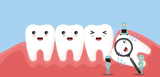 Un Groupe De Petits Dentistes S'occupe D'une Grande Dent. Caractère De Dent De Sagesse Impacté Poussant Les Dents Adjacentes Provoquant Une Inflammation, Des Maux De Dents, Des Douleurs Aux Gencives. Vecteur Premium