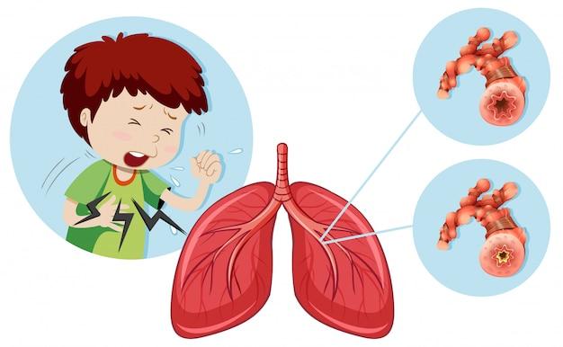 Un Homme Ayant Une Maladie Pulmonaire Obstructive Chronique Vecteur Premium