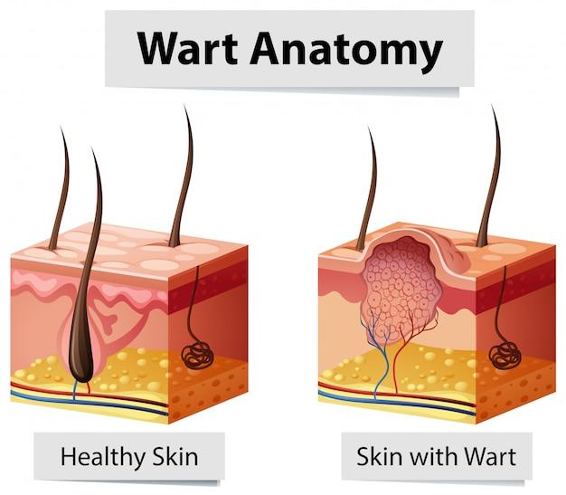 Illustration de l'anatomie de la peau humaine de verrue Vecteur gratuit