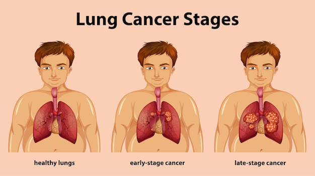 Illustration Informative Des Stades Du Cancer Du Poumon Vecteur gratuit