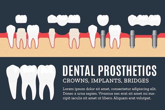 Illustration De Prothèse Dentaire Avec Des Icônes D'implant Dentaire, De Couronne Et De Pont Vecteur Premium