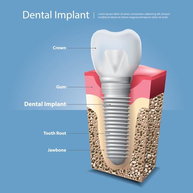 Illustration vectorielle de dents humaines et implant dentaire Vecteur Premium