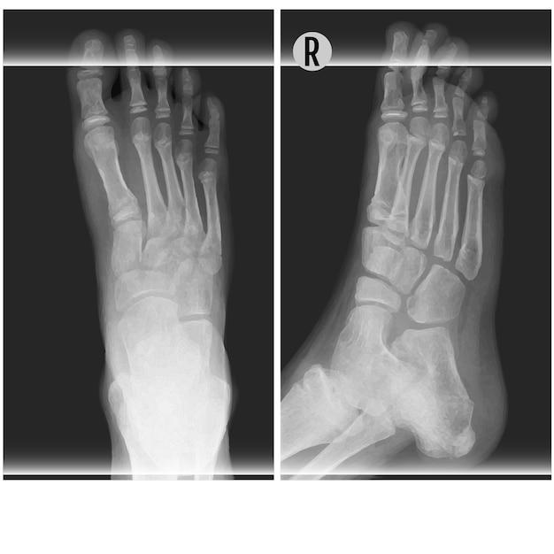 Illustration vectorielle de pied humain ankel et jambe xray. en haut et à droite Vecteur Premium