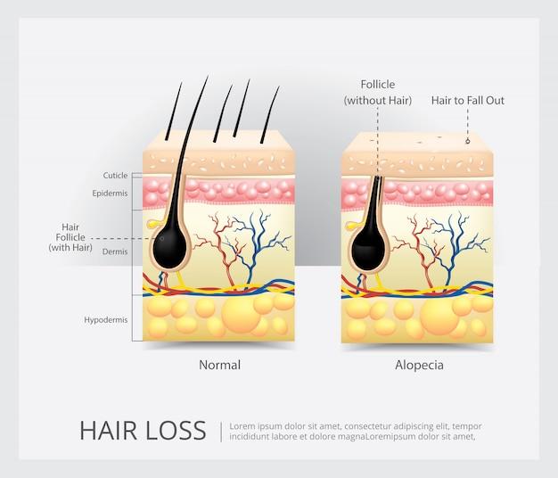 Illustration vectorielle de structure de perte de cheveux Vecteur Premium