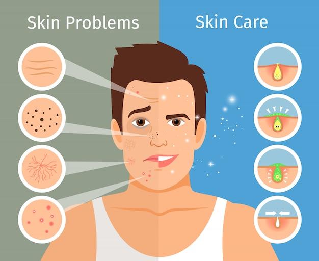 Illustration vectorielle de visage masculin peau traitement. portrait de jeune homme avec des peaux faciales belles et troublées Vecteur Premium