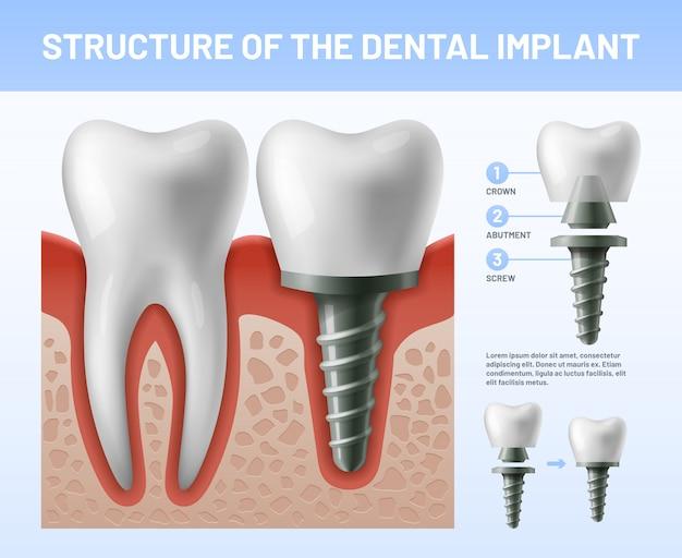 Implant dentaire procédure d'implantation ou piliers de la couronne dentaire. illustration de la santé Vecteur Premium