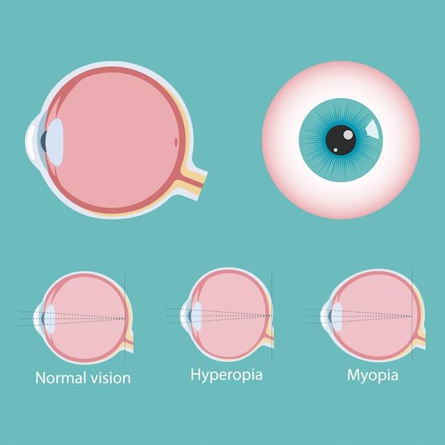 Infographie Des Défauts Oculaires Vecteur Premium