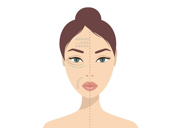 Injection faciale d'acide hyaluronique. beauté, cosmétologie, concept anti-âge. coups de beauté vector illustration Vecteur Premium