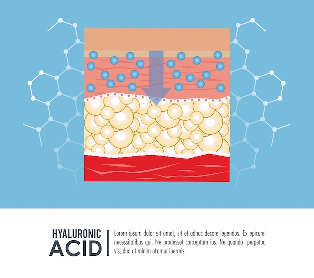 Injection de remplissage d'acide hyaluronique infographique Vecteur Premium