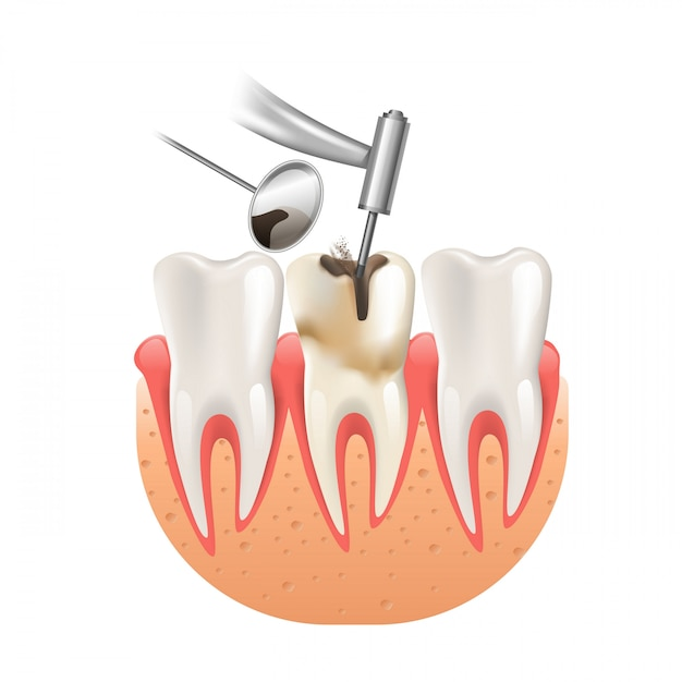 Nettoyer les caries au foret dentaire Vecteur Premium