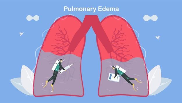L'œdème Pulmonaire Est Un Symptôme Que Les Poumons Se Remplissent De Liquide. Traitement Et Diagnostic. Le Corps A Du Mal à Obtenir Suffisamment D'oxygène Jusqu'à L'essoufflement. Vecteur Premium